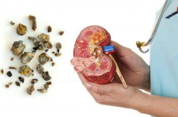 Obat Batu Empedu di Apotik