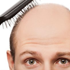 Obat Penumbuh Rambut Alami di Apotik
